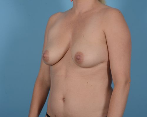 Breast Augmentation Gallery - Patient 10380368 - Image 5