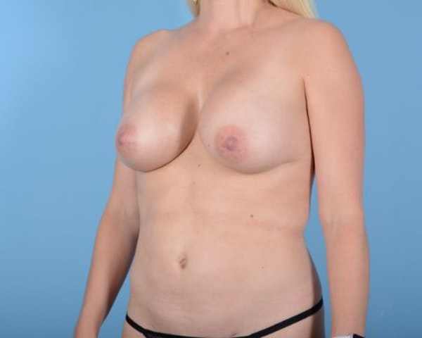 Breast Augmentation Gallery - Patient 10380368 - Image 6