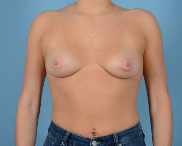 Breast Augmentation Gallery - Patient 10380378 - Image 1