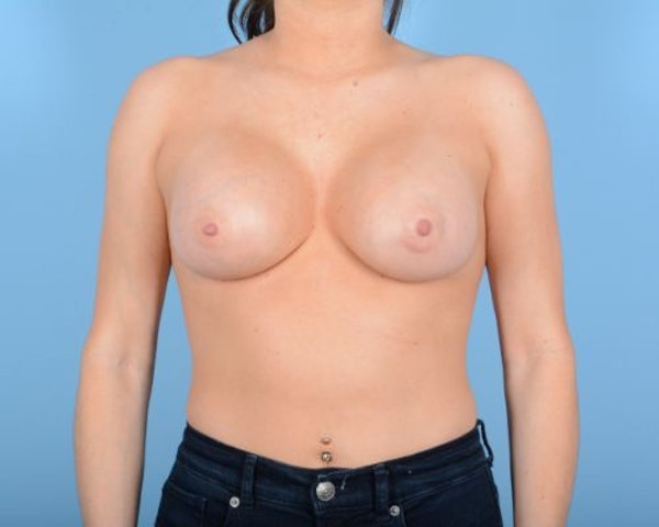 Breast Augmentation Gallery - Patient 10380378 - Image 2