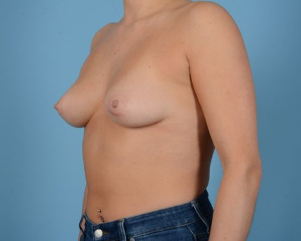 Breast Augmentation Gallery - Patient 10380378 - Image 3