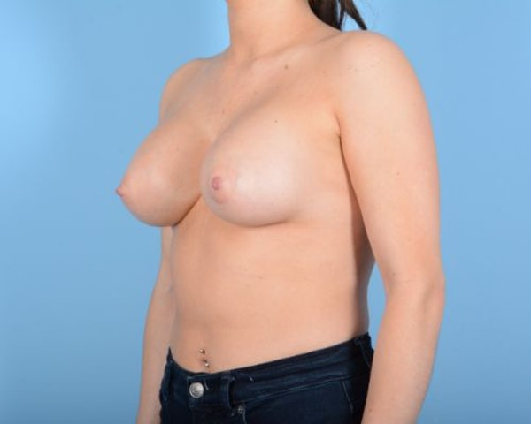 Breast Augmentation Gallery - Patient 10380378 - Image 4
