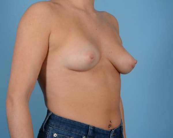 Breast Augmentation Gallery - Patient 10380378 - Image 7