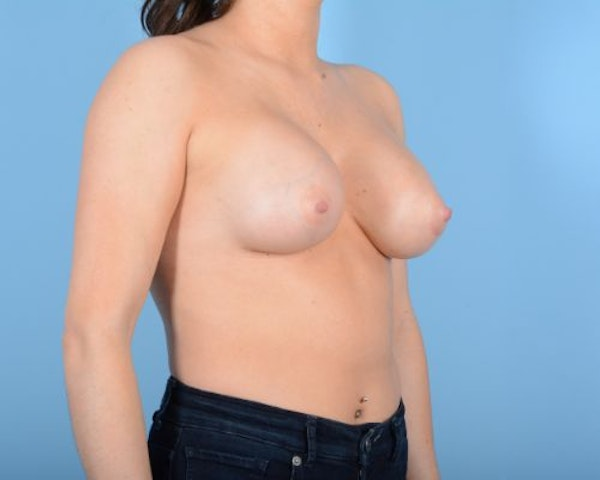 Breast Augmentation Gallery - Patient 10380378 - Image 8