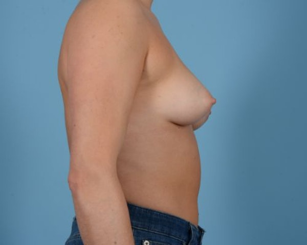 Breast Augmentation Gallery - Patient 10380378 - Image 9