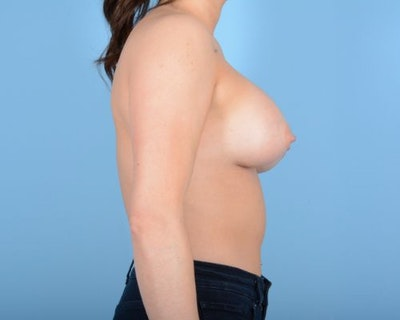 Breast Augmentation Gallery - Patient 10380378 - Image 10