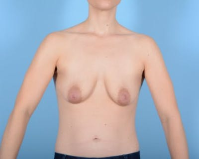 Breast Lift Gallery - Patient 10380439 - Image 1