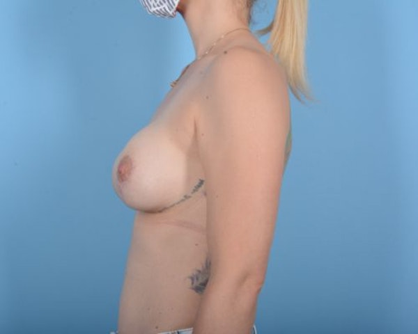 Breast Lift Gallery - Patient 10380439 - Image 4