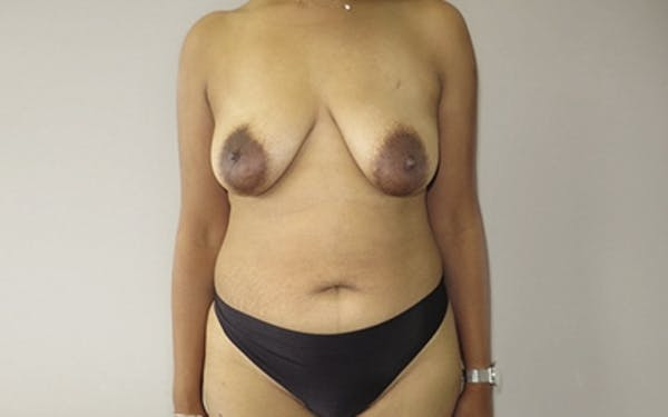 Breast Lift Gallery - Patient 10380441 - Image 1