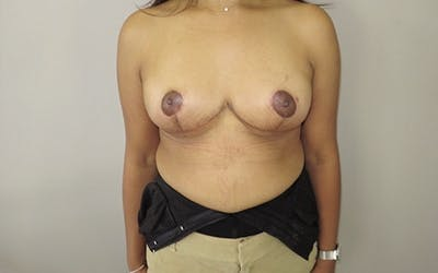 Breast Lift Gallery - Patient 10380441 - Image 2