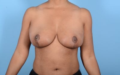 Before and After Breast Reduction and lift