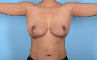 Breast Reduction Gallery - Patient 10380450 - Image 4