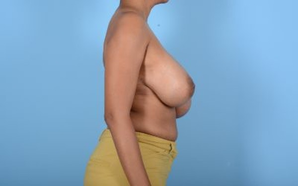 Breast Reduction Gallery - Patient 10380450 - Image 5