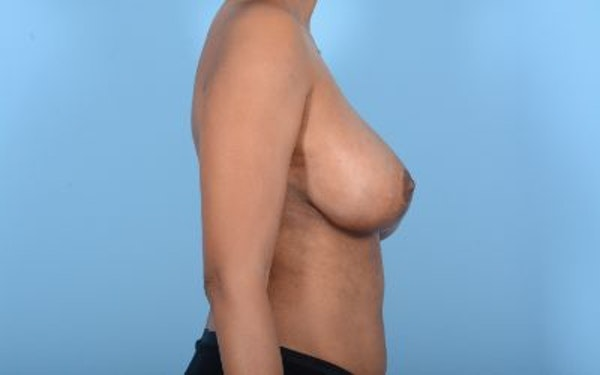 Breast Reduction Gallery - Patient 10380450 - Image 6