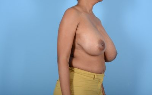 Breast Reduction Gallery - Patient 10380450 - Image 7
