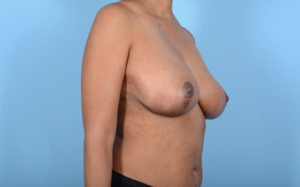 Breast Reduction Gallery - Patient 10380450 - Image 8