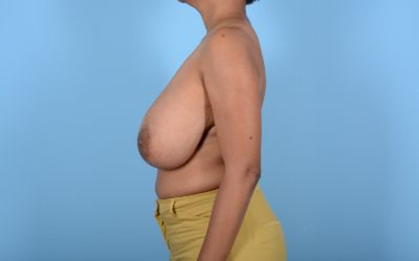 Breast Reduction Gallery - Patient 10380450 - Image 9