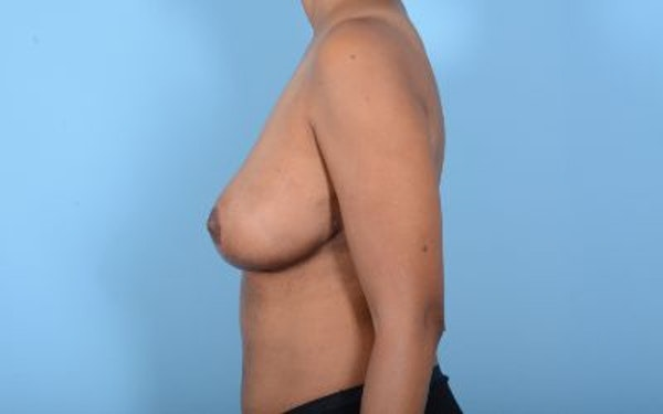 Breast Reduction Gallery - Patient 10380450 - Image 10