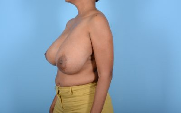 Breast Reduction Gallery - Patient 10380450 - Image 11
