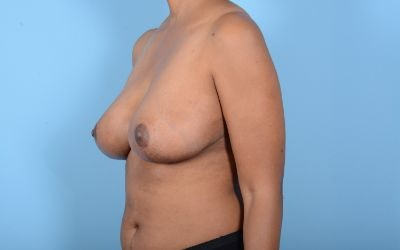 Breast Reduction Gallery - Patient 10380450 - Image 12