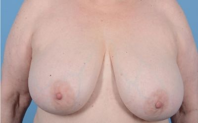 Breast Reduction Gallery - Patient 10380452 - Image 1