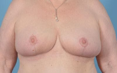 Breast Reduction Gallery - Patient 10380452 - Image 2