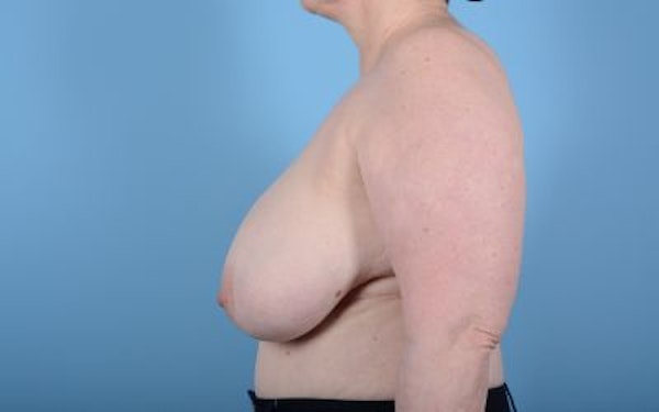 Breast Reduction Gallery - Patient 10380452 - Image 3