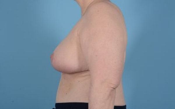 Breast Reduction Gallery - Patient 10380452 - Image 4