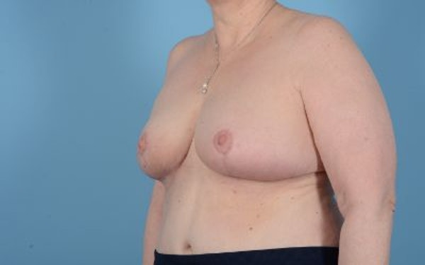 Breast Reduction Gallery - Patient 10380452 - Image 6