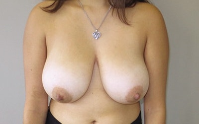 Breast Reduction Gallery - Patient 10380454 - Image 1