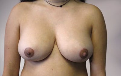 Breast Reduction Gallery - Patient 10380454 - Image 3