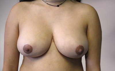 Breast Reduction Gallery - Patient 10380454 - Image 2