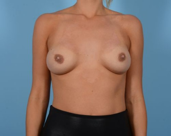 Breast Revision Gallery - Patient 10380549 - Image 1