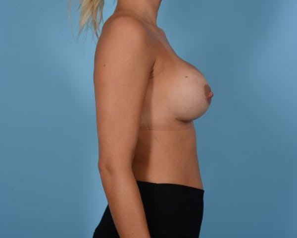 Breast Revision Gallery - Patient 10380549 - Image 6