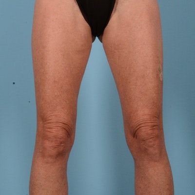 Liposuction Gallery - Patient 10380581 - Image 1