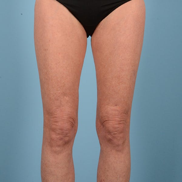 Liposuction Gallery - Patient 10380581 - Image 2