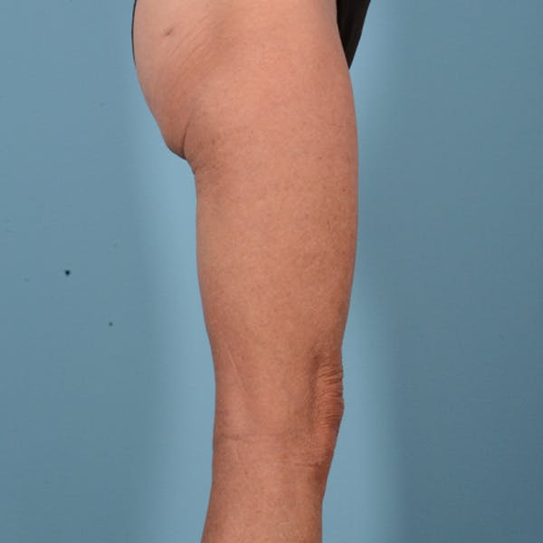 Liposuction Gallery - Patient 10380581 - Image 3