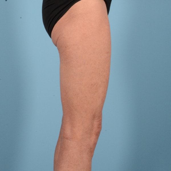 Liposuction Gallery - Patient 10380581 - Image 4