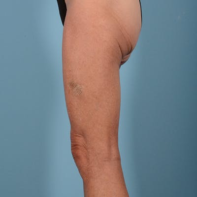 Liposuction Gallery - Patient 10380581 - Image 5