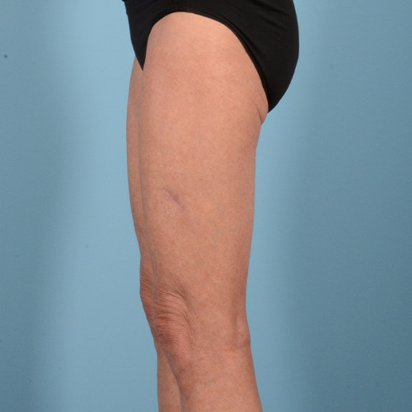 Liposuction Gallery - Patient 10380581 - Image 6