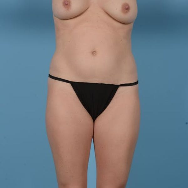 Liposuction Gallery - Patient 10380583 - Image 1