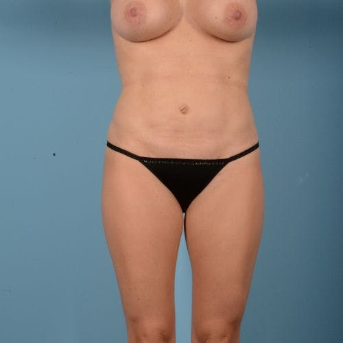Liposuction Gallery - Patient 10380583 - Image 2