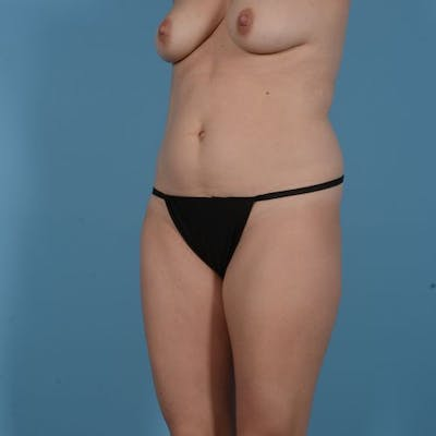 Liposuction Gallery - Patient 10380583 - Image 3