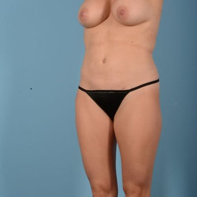 Liposuction Gallery - Patient 10380583 - Image 4