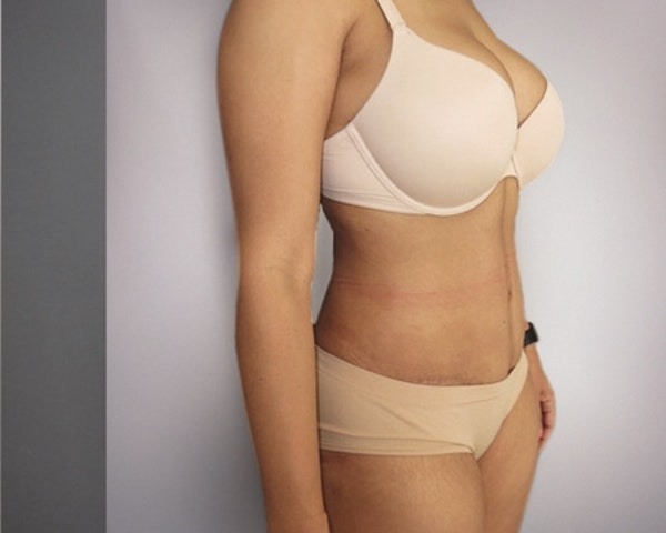 Tummy Tuck Gallery - Patient 10380588 - Image 2