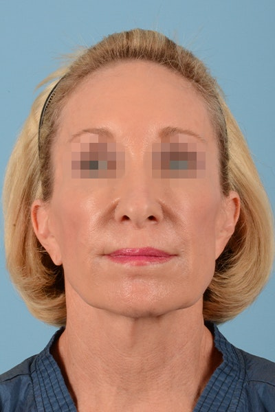 Facelift Gallery - Patient 10380596 - Image 1
