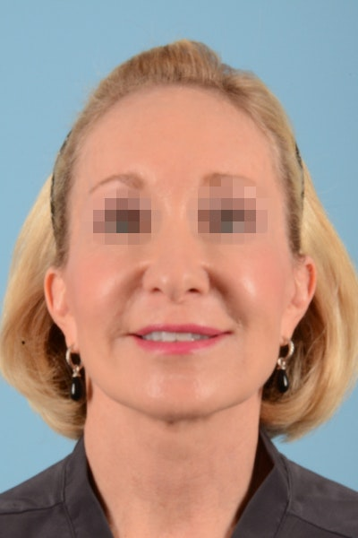 Facelift Gallery - Patient 10380596 - Image 2