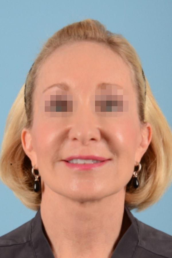 Facelift Gallery - Patient 10380596 - Image 2