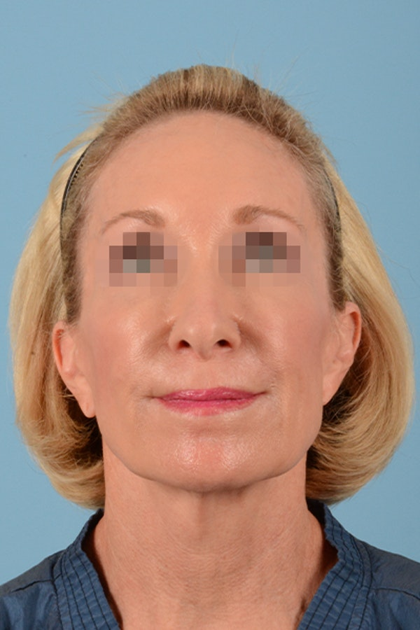Facelift Gallery - Patient 10380596 - Image 3