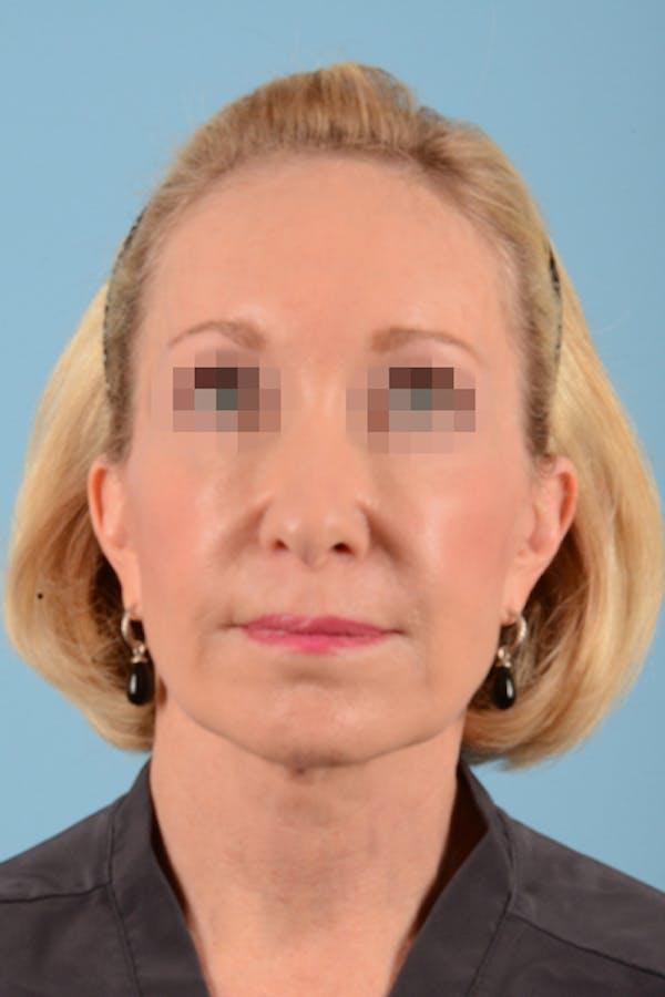 Facelift Gallery - Patient 10380596 - Image 4